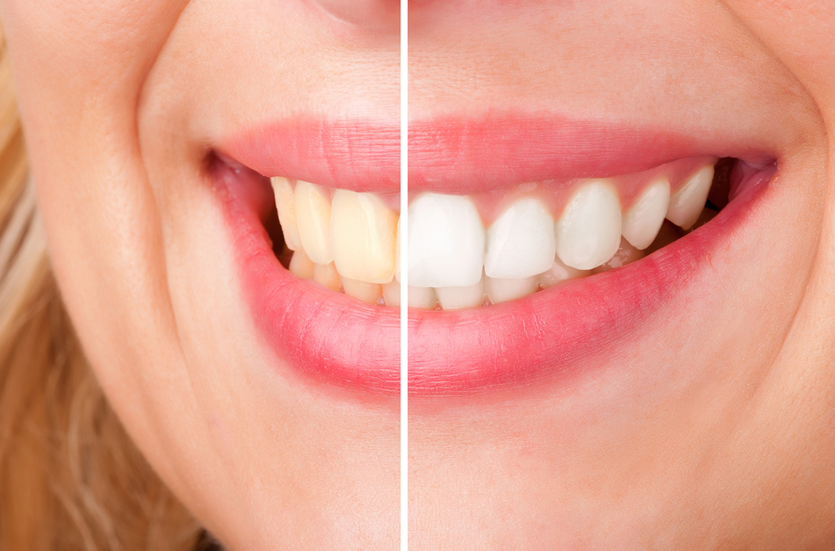 5 Affordable Teeth Whitening Products And Strategies Linhart