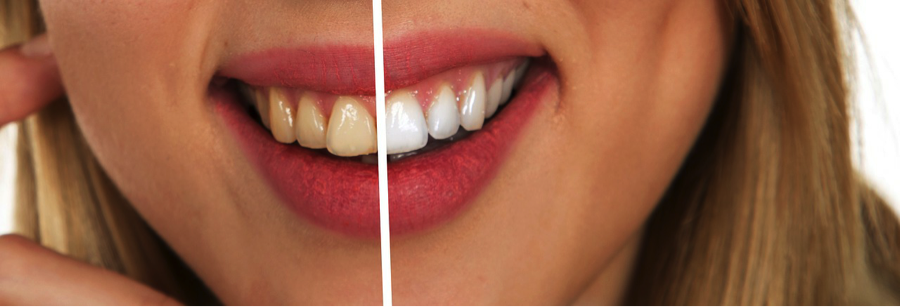 Yellow Teeth Before and After